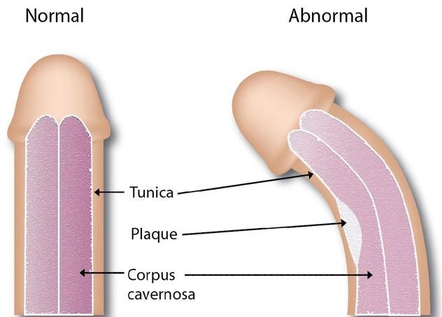 Curbarea anormala a penisului