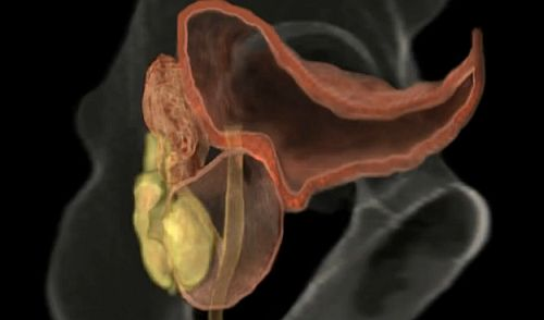 prostată și erecție penisul flasc nu este greu