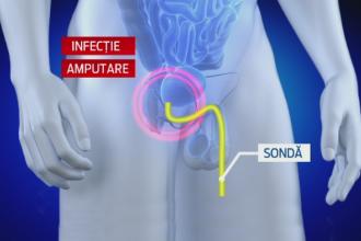 Amputatie partiala penis