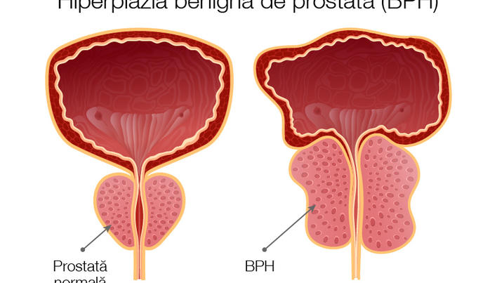 cum sunt conectate prostata și erecția)