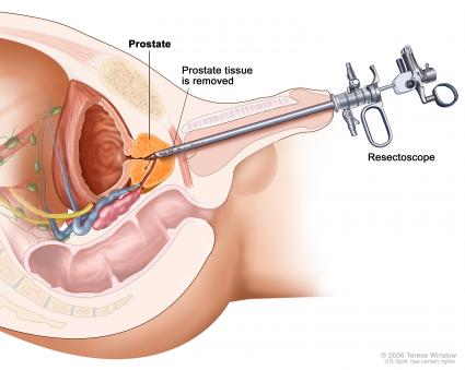 erecție după radioterapia prostatei puncte pe corpul unei erecții om