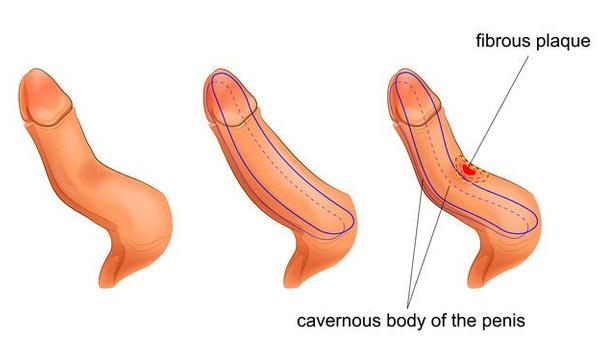 penis în erecție)