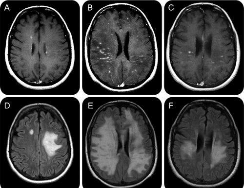 scleroză multiplă și erecție