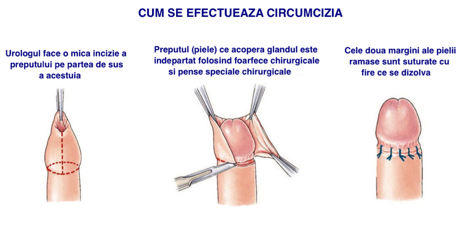 umflarea penisului la un bărbat