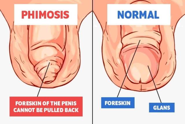 Care îmi provoacă mâncărimea penisului și cum îl tratez?