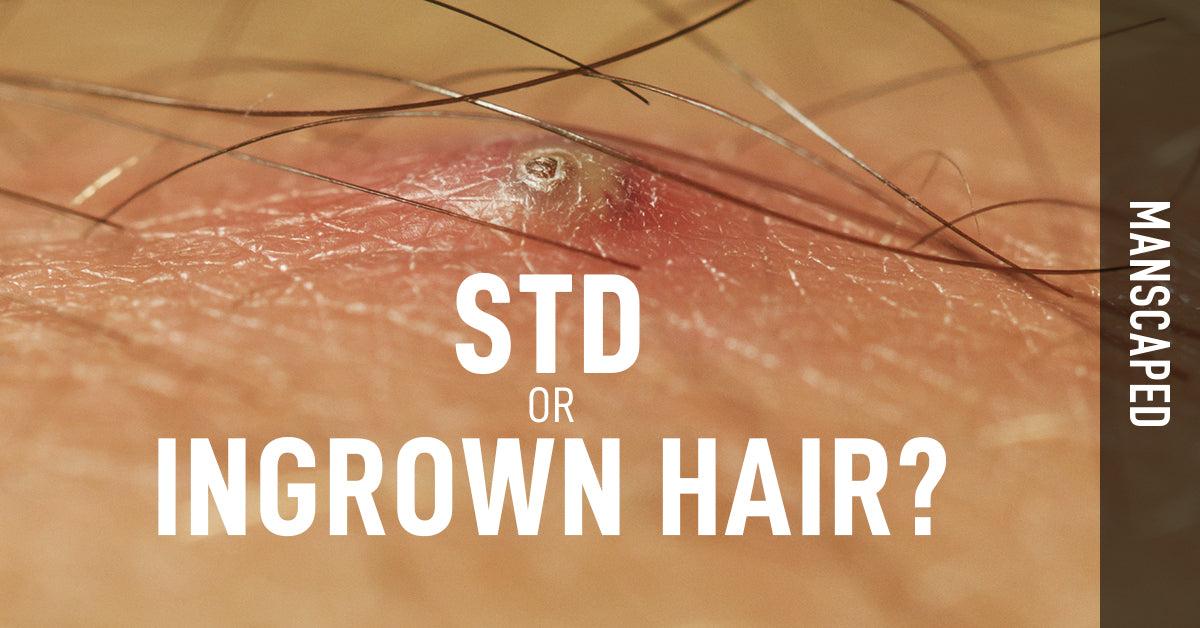 Herpes genital: simptome, cauze, tratament