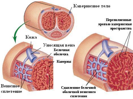 erecție după operația de bypass