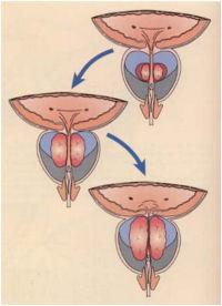 erecția prostamolului