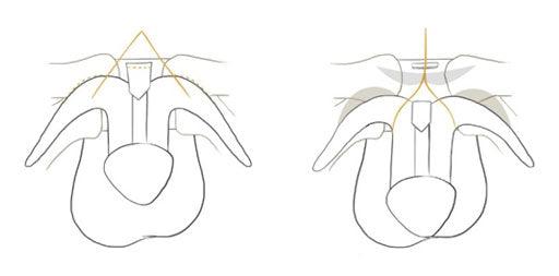 Creșteți dimensiunea penisului în mod natural! - Festival Enescu Sinaia