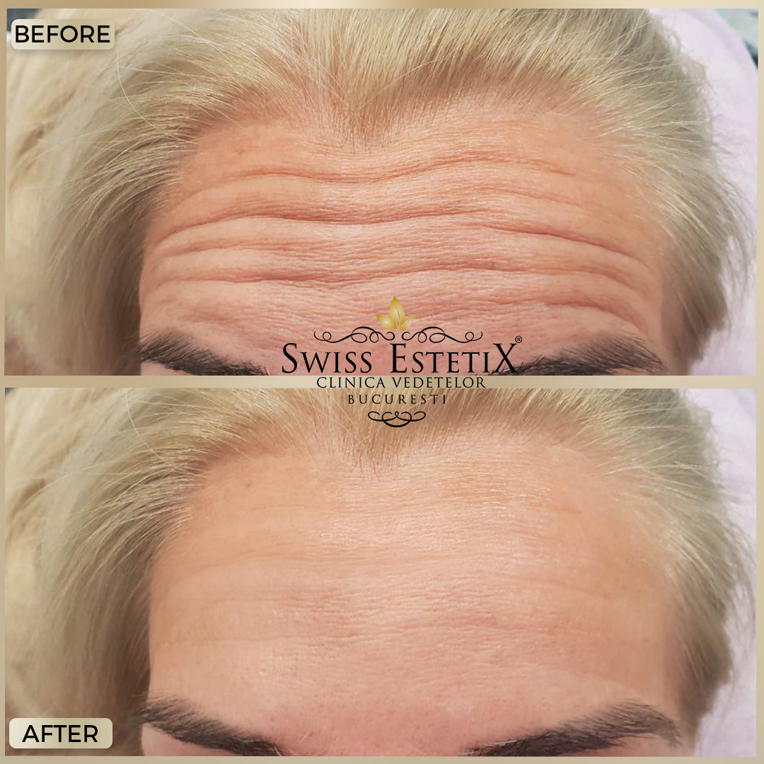 "Sandra Bullock, tratament ""penis facial"" împotriva ridurilor"