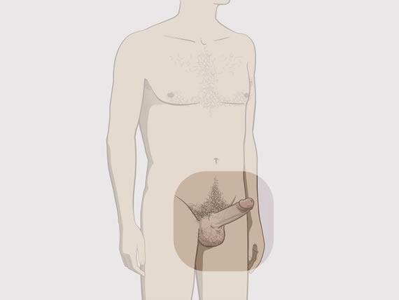 fără erecție în picioare