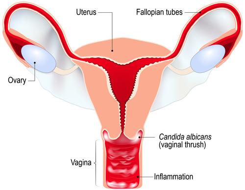 senzație de disconfort la nivelul penisului