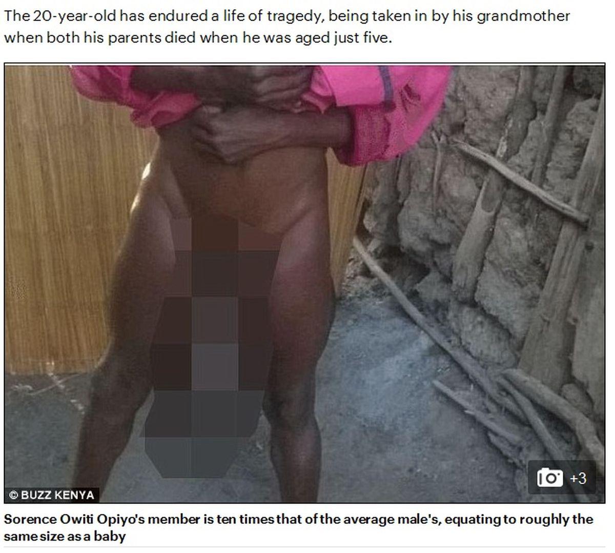 malformația penisului