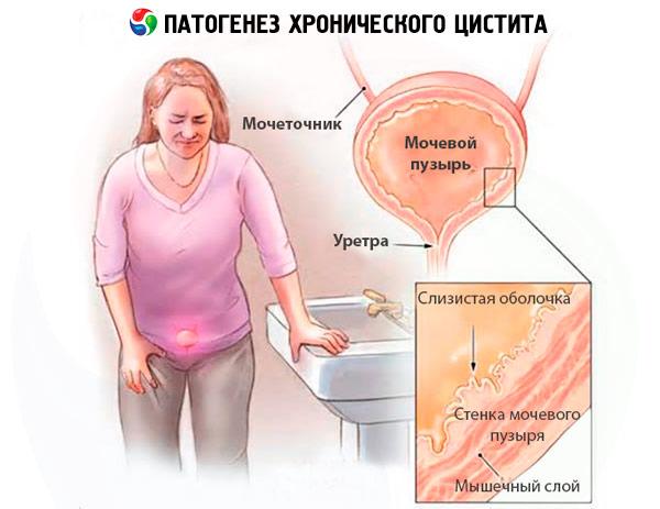 de ce afectează prostatita erecția