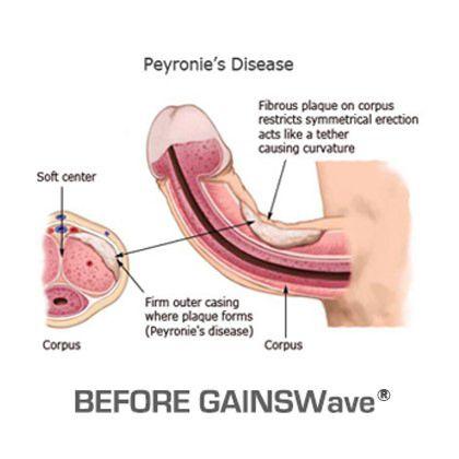 Boala Peyronie, afecţiunea care îţi poate afecta viaţa sexuală - CSID: Ce se întâmplă Doctore?