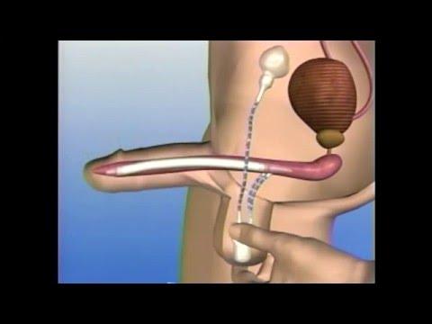 erecție după operația de prostatectomie)