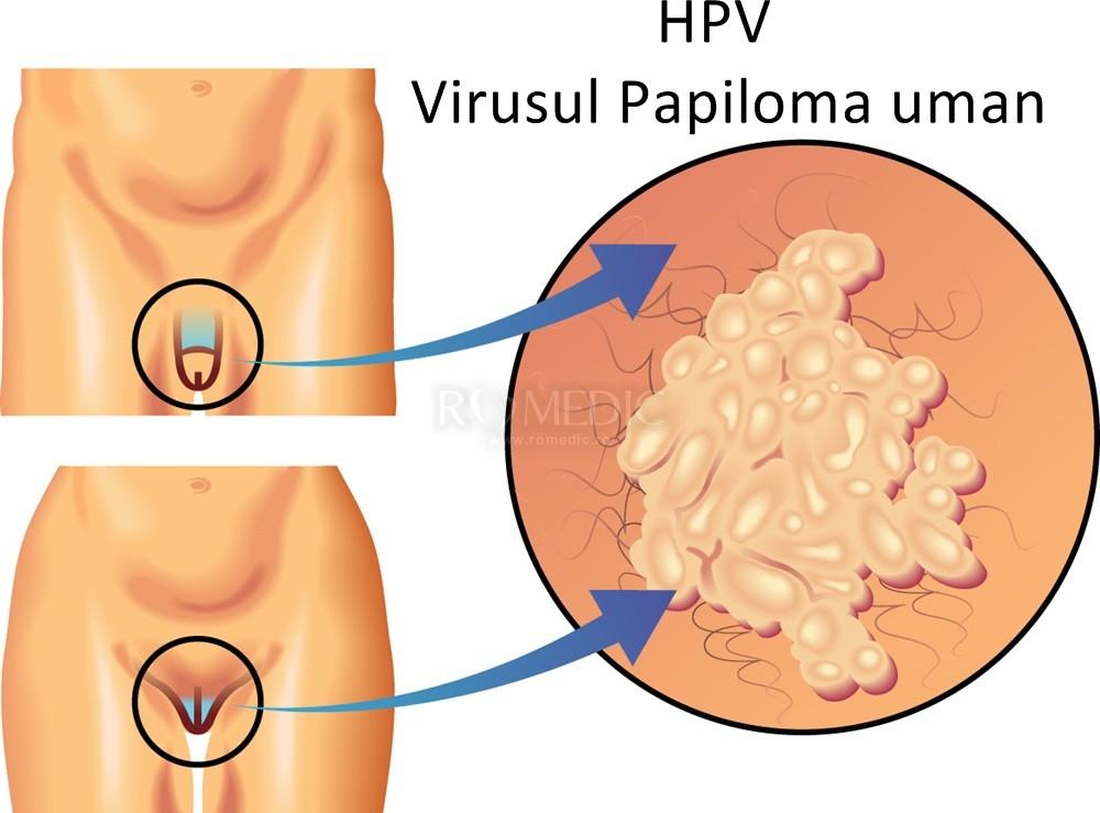 o neoplazie pe penis