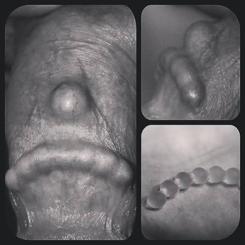Cum să faci sex dacă partenerul are penisul prea mic - CSID: Ce se întâmplă Doctore?