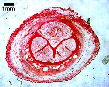 Ghid de recoltare analize medicale de laborator | Bioclinica