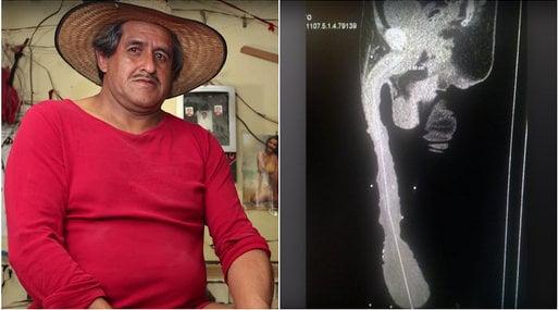 Un mexican are cel mai mare penis din lume. Acesta măsoară 48 de centimetri