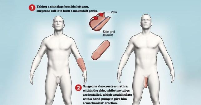 Negroiul are un penis de un metru si nu se poate futi cu nimeni