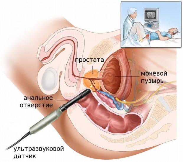 funcția prostatei în timpul erecției