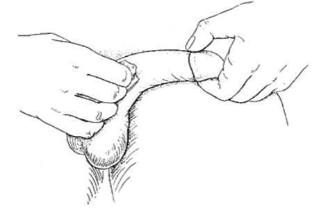 injecție în penis pentru o erecție