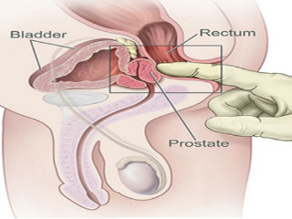 o erecție în timpul unui masaj de prostată)