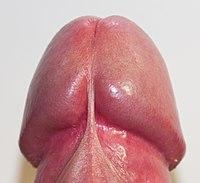 sul coronal pe penis)