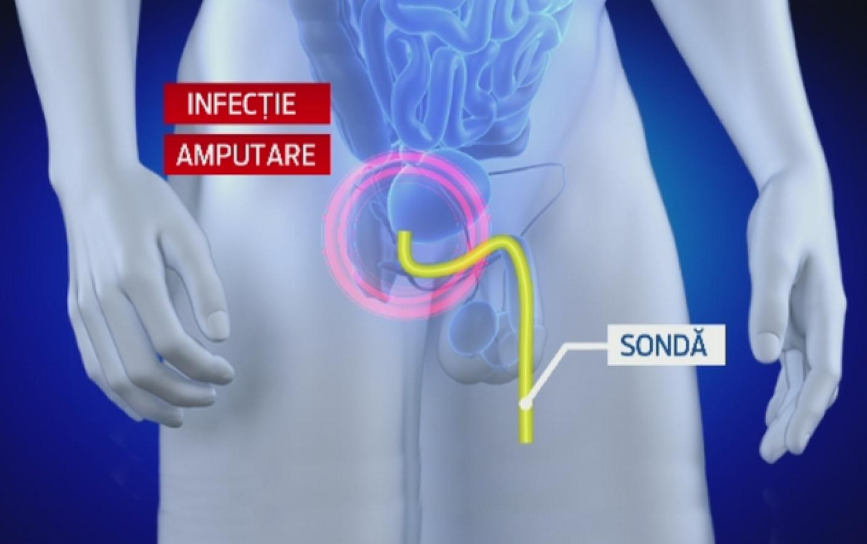 cum a fost luat penisul