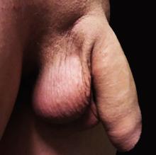 organul genital masculin în stare de erecție)