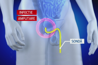 amputarea parțială a penisului
