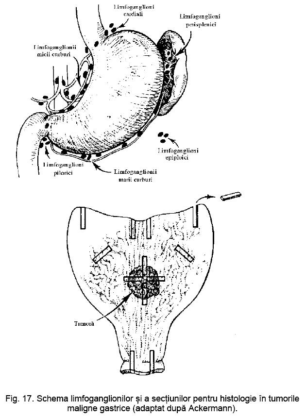 ce este biopsia penisului