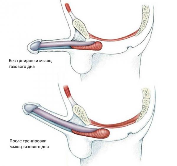 cum să restabiliți exercițiile de erecție