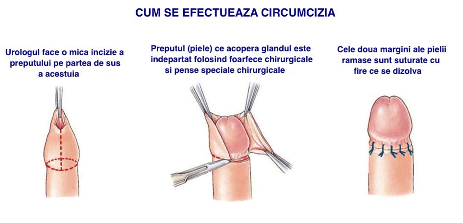 umflarea penisului la un bărbat)