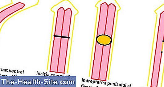 penis cât este dimensiunea medie
