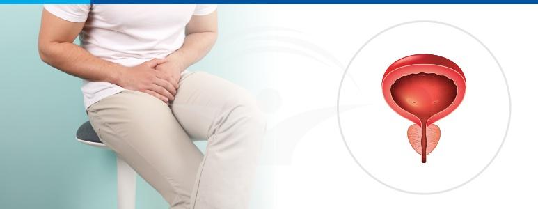 prostatita cronică poate afecta erecția