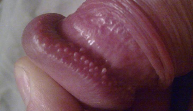 unge miere pe penis)