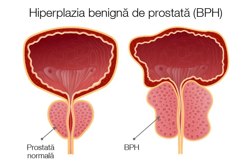 fără erecție cauza prostatei)