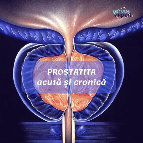 prostatită cronică erecție matinală)