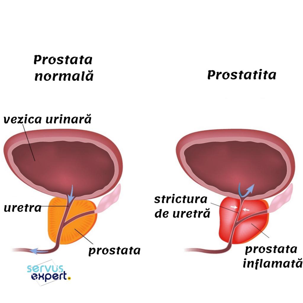 semne de prostatită și simptome și la erecții)
