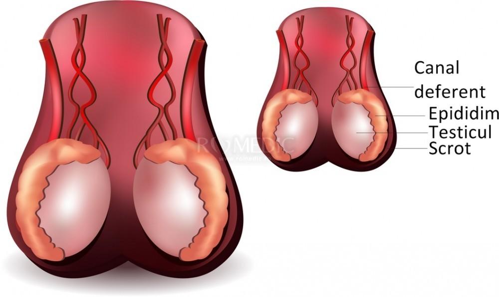 cu o erecție, testiculele doare