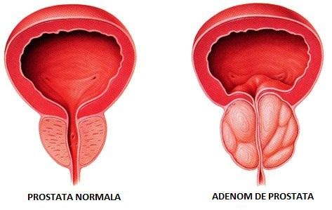 prostată și erecție pre- ejaculare pe penis