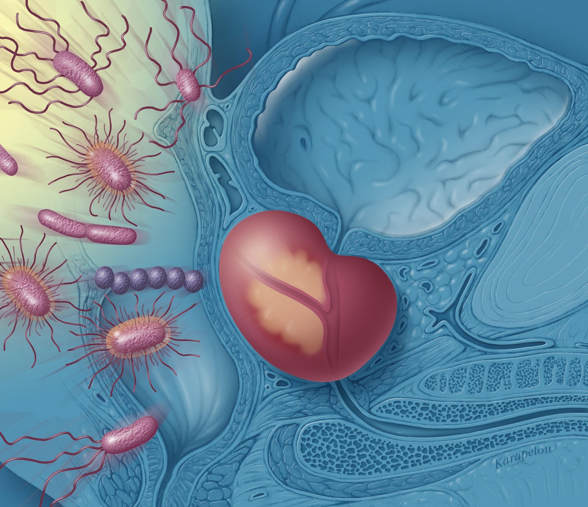 erecția dispare după masajul prostatei