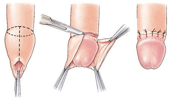 fără erecție după operația de hipospadias