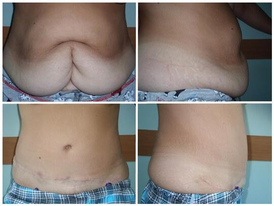 penis înainte și după operație)
