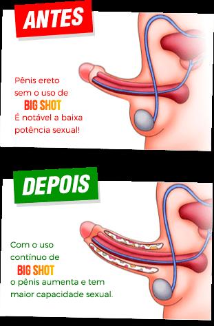 dacă penisul se deschide complet fără erecție în picioare
