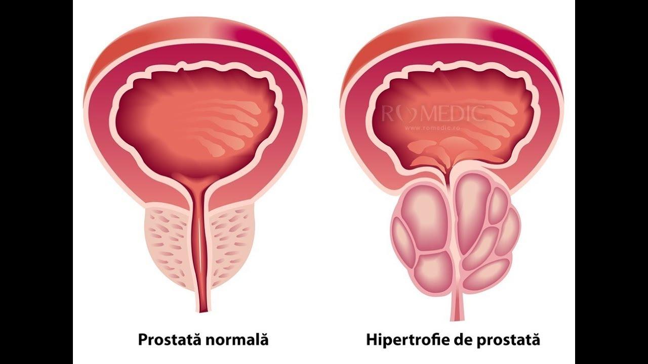 modul în care masajul de prostată afectează erecția
