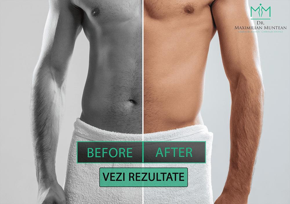 penis masculin înainte și după