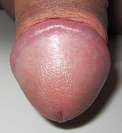 penis prea sensibil